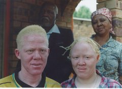 African albino brother & sister (parents in the back)
