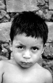 This child from Panama is suffering from Chagas disease manifested as an acute infection with swelling of the right eye (Romaña's sign). Source: CDC.