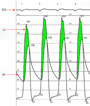 Simultaneous left ventricular and aortic pressure tracings demonstrate a pressure gradient between the left ventricle and aorta, suggesting aortic stenosis. The left ventricle generates higher pressures than what is transmitted to the aorta.  The pressure gradient, caused by aortic stenosis, is represented by the green shaded area. (AO = ascending aorta; LV = left ventricle; ECG = electrocardiogram.)