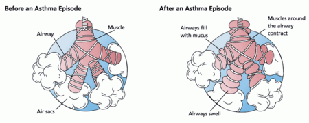 During an asthma episode, inflamed airways react to environmental triggers such as smoke, dust, or pollen. The airways narrow and produce excess mucus, making it difficult to breathe.