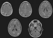 This is a set of images from an MRI of the brain in a patient with TSC.