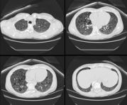 This computed tomography image shows randomly arranged cysts in both lungs.  The patient had TSC and a renal AML.