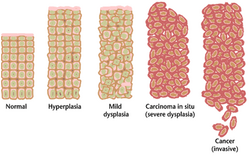 Tissue can be organized in a continuous spectrum from normal to cancer.