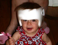 A child wearing a cranial band.