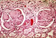 Photomicrography of nodular glomerulosclerosis in Kimmelstein-Wilson syndrome. Source: CDC