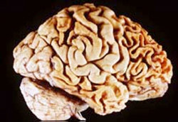 A human brain showing frontotemporal lobar degeneration causing frontotemporal dementia.
