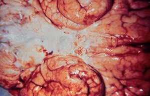 Inferior view of a brain with meningitis caused by Haemophilus influenzae. Source: CDC