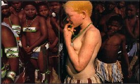 Young woman with albinism from Malawi. In some parts of Africa, albinism is considered a sign of bad luck, causing those with the genetic disorder to be shunned.