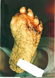 A picture of a 40 y/o Caucasian female with only the soles of the feet affected. The amputation was prior to this admission