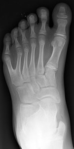 Left foot with postaxial polydactyly of 5th ray