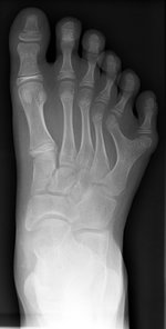 Right foot with postaxial polydactyly of 5th ray