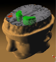 Data from a PET study25 suggests the less the frontal lobes activated (red) during a working memory task, the greater the increase in abnormal dopamine activity in the striatum (green), thought to be related to the neurocognitive deficits in schizophrenia.
