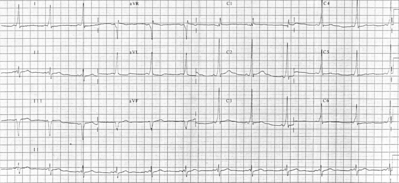 12 lead EKG of individual with Wolff-Parkinson-White syndrome.